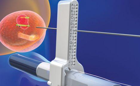 biopsja fuzyjna prostaty w krakowskim szpitalu na klinach
